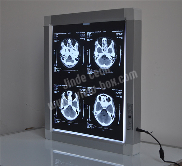 x-ray viewer for E.N.T.