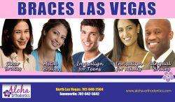Braces Las Vegas