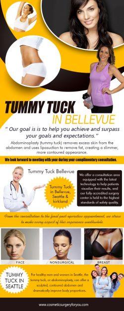 tummy tuck inbellevue