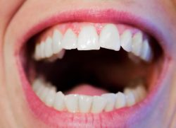 best invisalign orthodontist nyc | http://www.smilehealthspa.com/contact-us/