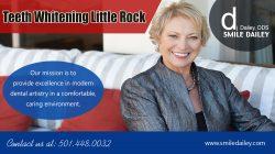 Teeth Whitening Little Rock