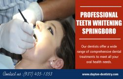 Professional Teeth Whitening Springboro