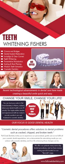 Teeth Whitening Fishers | 3175968000 | fallcreekdentistry.com