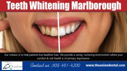 Teeth Whitening Marlborough