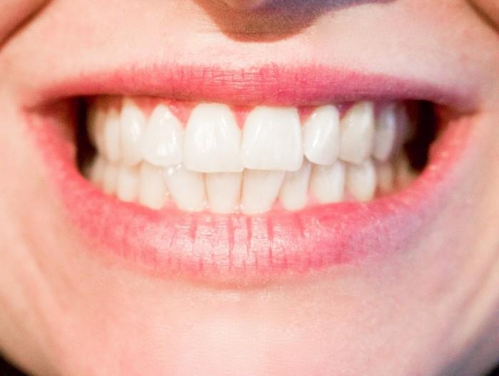 Best Cosmetic Dentist near Chamblee